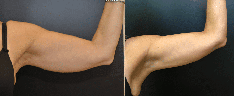 CoolSculpting Before & After Cases Baltimore MD   Pikesville